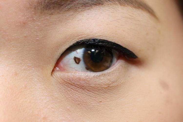 Tiếp xúc với tia UV mạnh mà không có sự bảo vệ, mắt có thể bị ung thư.