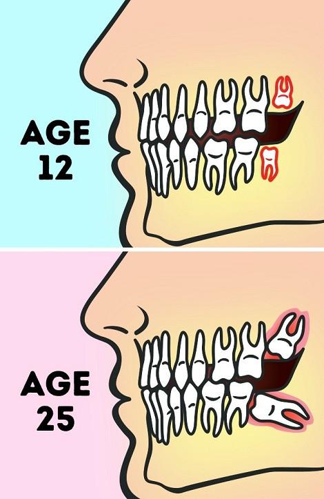 Vị trí của răng khôn ở tuổi 12 và tuổi 25 trong trường hợp không nhú lên được.