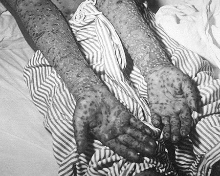 Phòng ngừa bệnh đậu mùa