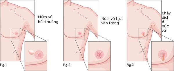Triệu chứng và biểu hiện ung thư vú ở nam giới