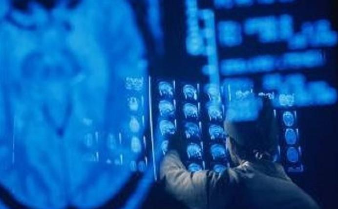 Các bệnh nhân sẽ được theo dõi bằng máy MRI trong nhiều tháng.