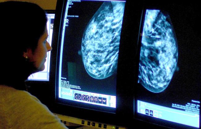 Dậy thì sớm 1 năm, tăng nguy cơ ung thư ít nhất là 6%