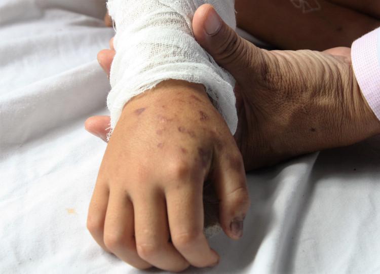 Vết cắn của rắn lục đuôi đỏ trên tay một bệnh nhi.
