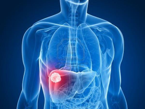 Nghiện rượu nặng là một trong những yếu tố nguy cơ đối với ung thư gan.