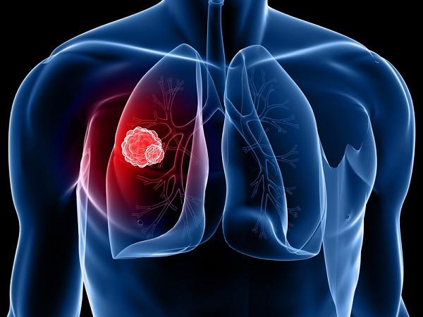 Ung thư phổi có tỷ lệ tử vong cao.