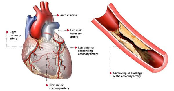 Bệnh mạch vành có thể dẫn tới các cơn nhồi máu cơ tim hết sức nguy hiểm.