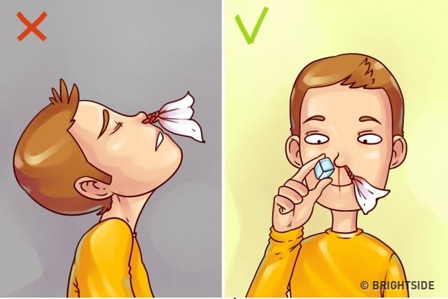 Khi chảy máu cam, bạn nên giữ đầu thẳng để máu chảy xuôi xuống, chườm lạnh ngăn máu chảy nhiều.