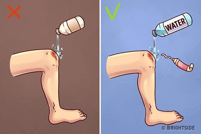 Rửa vết thương đúng cách là rửa bằng nước sạch hoặc nước đun sôi, rồi bôi thuốc mỡ lên vết thương.