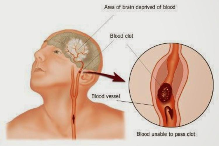 3-4 giờ từ khi khởi phát đột quỵ được coi là thời gian vàng để cứu sống người bệnh.