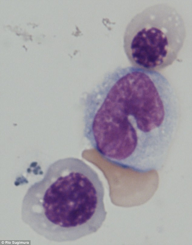 Công nghệ tế bào gốc cho phép con người tạo ra máu từ chính da của mình.