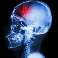 Vi khuẩn ruột có thể gây tổn thương não, đột quỵ
