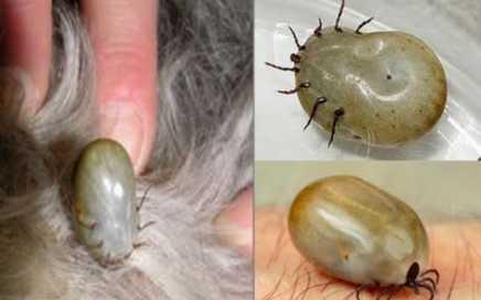 Sử dụng một cây kim vô trùng và loại từng phần của ve trên da.