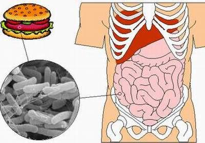Bệnh lỵ trực khuẩn là bệnh nhiễm khuẩn đường ruột cấp tính do trực khuẩn Shigella gây ra.