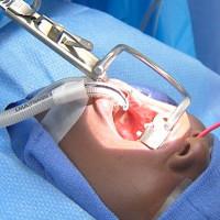 Biến chứng nguy hiểm có thể xảy ra khi cắt amidan