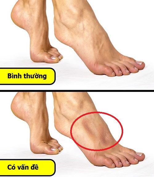 Để biết cơ thể có gặp vấn đề này không bạn kiễng 2 bàn chân lên chỉ đứng bằng mũi chân.
