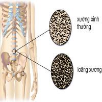 Tìm hiểu về vai trò của vitamin K đối với cơ thể