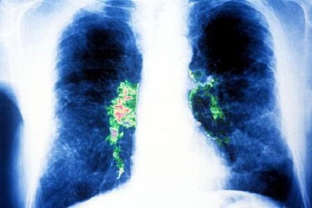 Legionella pneumophila xâm nhập vào phổi qua đường hô hấp.