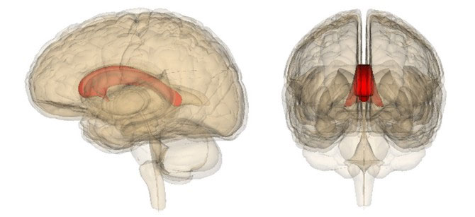 Thể chai (corpus callosum)