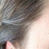 Tại sao tóc lại bạc?