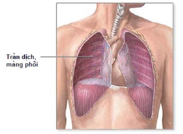 Tràn dịch màng phổi là biểu hiện hoặc biến chứng của nhiều loại bệnh khác nhau.