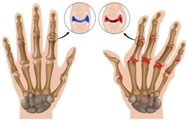 Một bàn tay phải bị viêm khớp.