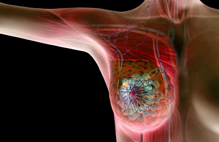 Nhỏ lông nách và dùng chất khử mùi cùng lúc sẽ làm gia tăng nguy cơ mắc ung thư vú gấp đôi.