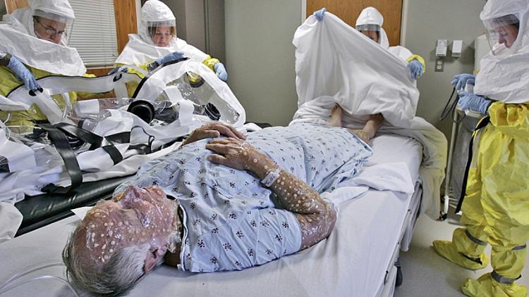 Nhà khoa học Canada tổng hợp thành công virus đậu mùa, nguy cơ đại dịch bệnh chết người quay trở lại.