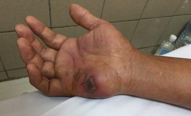 Hình ảnh nốt rắn hổ mang chúa cắn trên tay bệnh nhân.