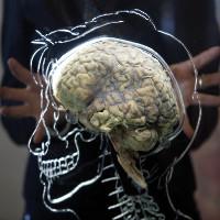 Nhà khoa học tuyên bố giúp người chết não sống lại