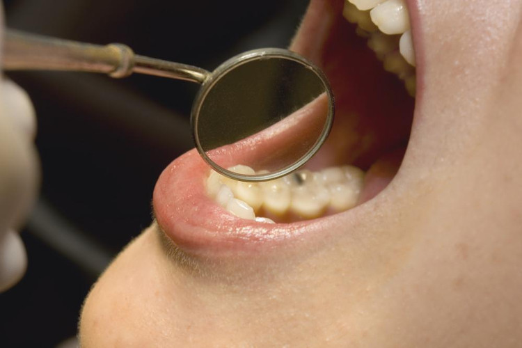 Người mắc bệnh nướu răng có nguy cơ ung thư khi về già