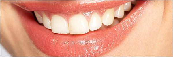 Thực ra răng của bạn cũng bình thường thôi.