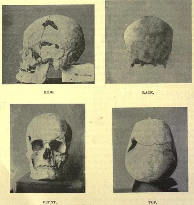 Hộp sọ thuộc hài cốt pharaoh Sa-Nakht.