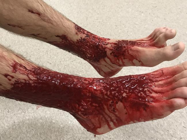 Sam được đưa vào bệnh viện cấp cứu với 2 chân đầy máu.