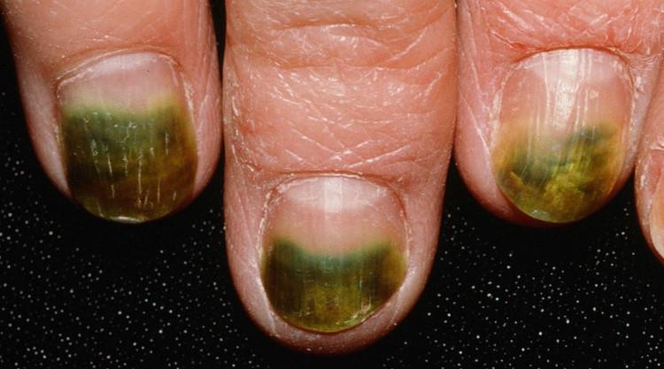Khuẩn Pseudomonas có thể gây bệnh nấm móng tay.