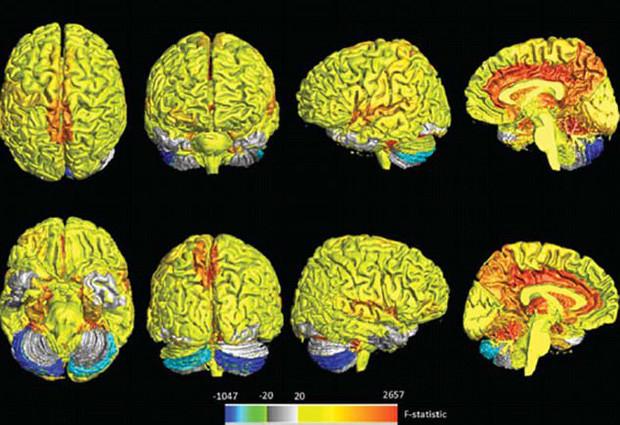Nhiều vùng não của phụ nữ hoạt động mạnh hơn so với nam giới.