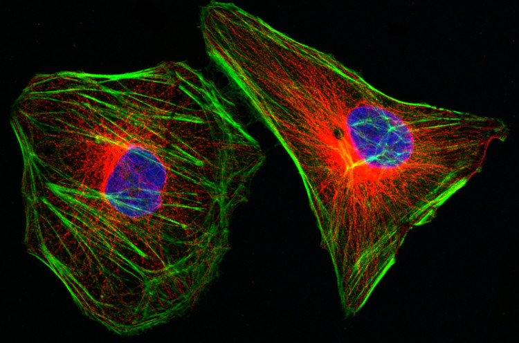 Tế bào ung thư cổ tử cung HeLa