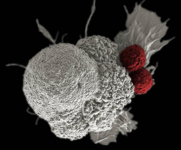 Đây là hình ảnh vi điện tử của một tế bào ung thư biểu mô miệng