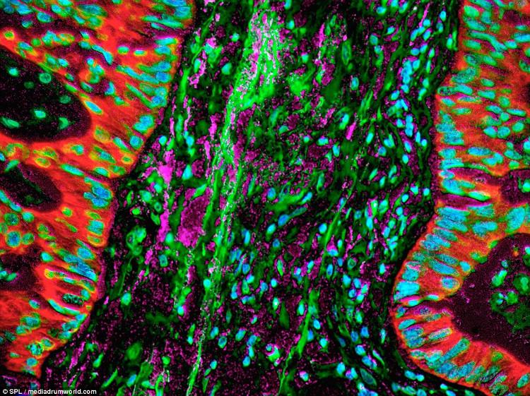 Trong hình ảnh này, ung thư phổi có liên quan đến phản ứng viêm tại chỗ