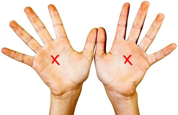 """Chữ """"X"""" này không bị ảnh hưởng, chia cắt, lẫn lộn với các đường chỉ tay nhỏ lẻ trên bàn tay."""