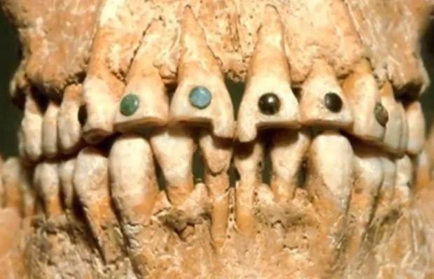 Bộ răng của người Ai Cập cổ.