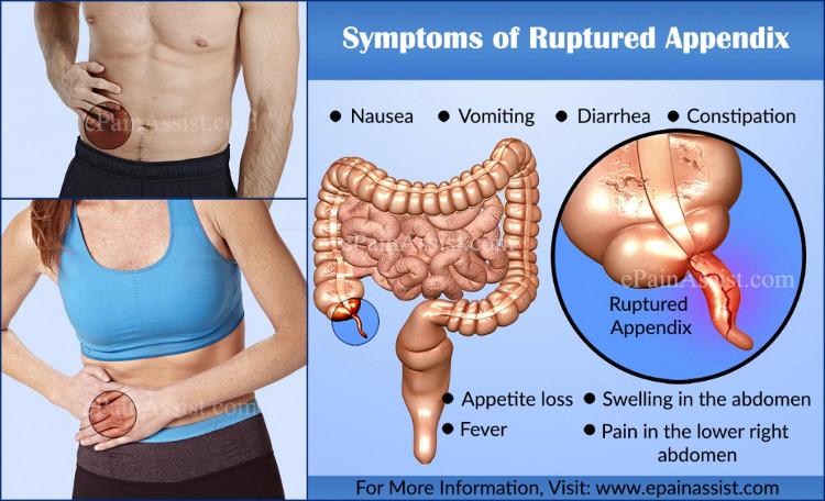 Khi trưởng thành, ruột thừa thực sự phục vụ một số chức năng quan trọng.
