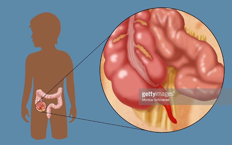 Trong giai đoạn thai nhi, ruột thừa có chức năng giữ các tế bào nội tiết.