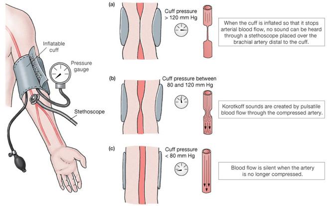 Nguyên lý đo huyết áp