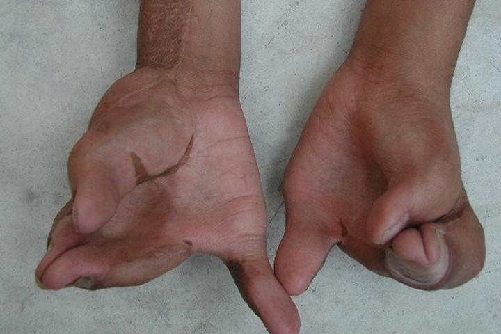 Các ngón tay bị dính vào nhau và co quắp.