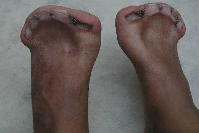 Bàn chân dị dạng với 5 móng chân nhưng hoàn toàn không có ngón.