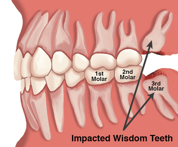 PAX9 là yếu tố phiên mã quan trọng trong phát triển răng, đặc biệt là răng khôn ở người.