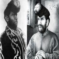 Sự thật về người đàn ông có hai đầurất nổi tiếng tại Mexico