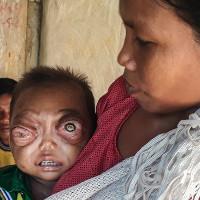 Mắc căn bệnh hiếm, bé trai không thể nhắm mắt