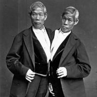 Cuộc đời gây tò mò của cặp song sinh dính liền 200 năm trước