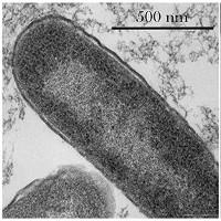 """Vi khuẩn """"siêu"""" kháng thuốc khi ở ngoài không gian"""